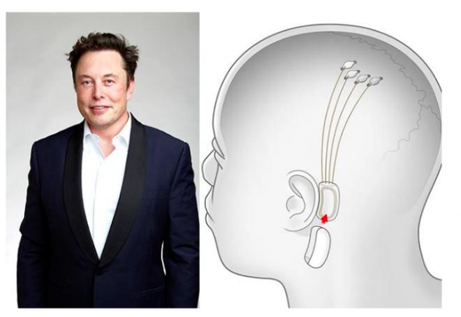 Elon Musk razvija čip koji će streamati glazbu - ravno u glavu